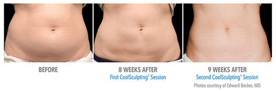 CoolSculpting Results of Stomach: Before; 8 weeks after; and after second treatment